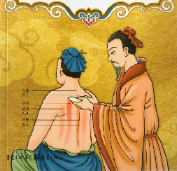 Illustration Moxibustion